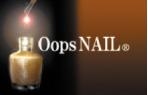 Oops NAIL
